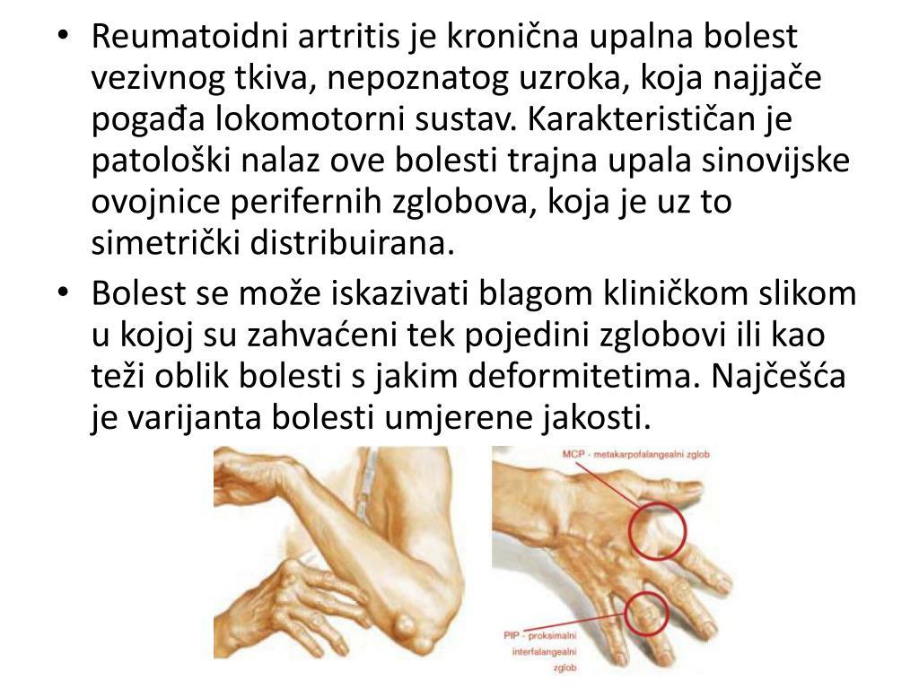 Reumatoidni