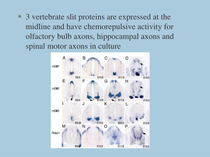 3 vertebrate slit proteins are expressed at the midline and have chemorepulsive activity for olfactory bulb axons, hippocampal axons and spinal motor axons in culture