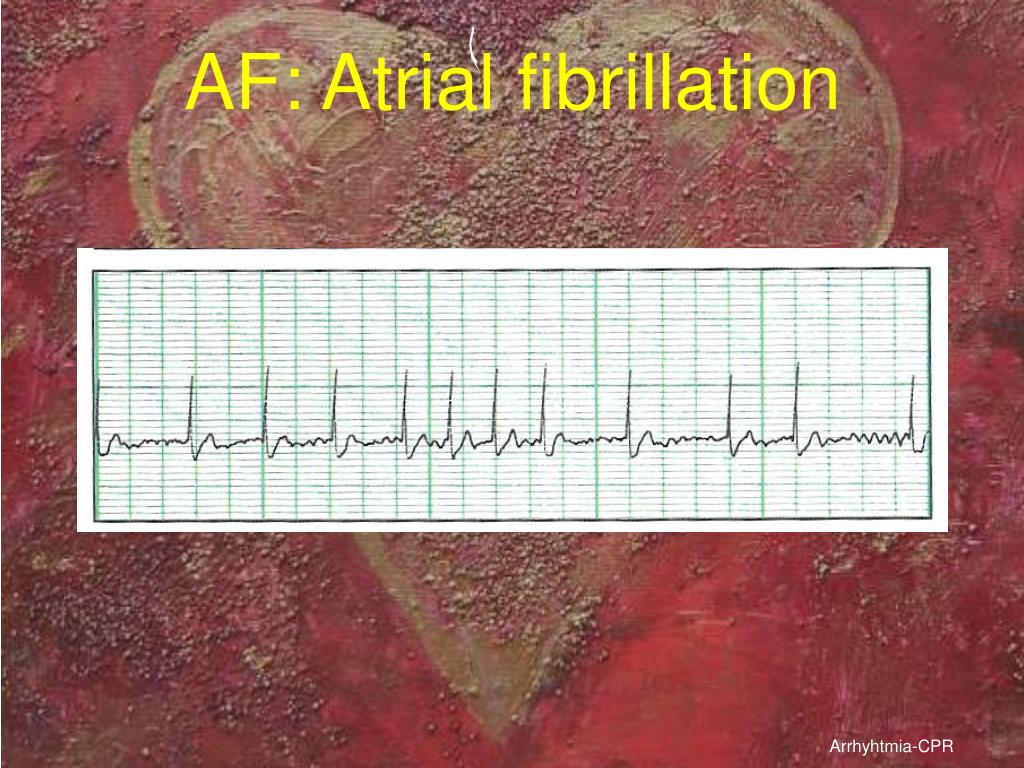 AF: Atrial fibrillation