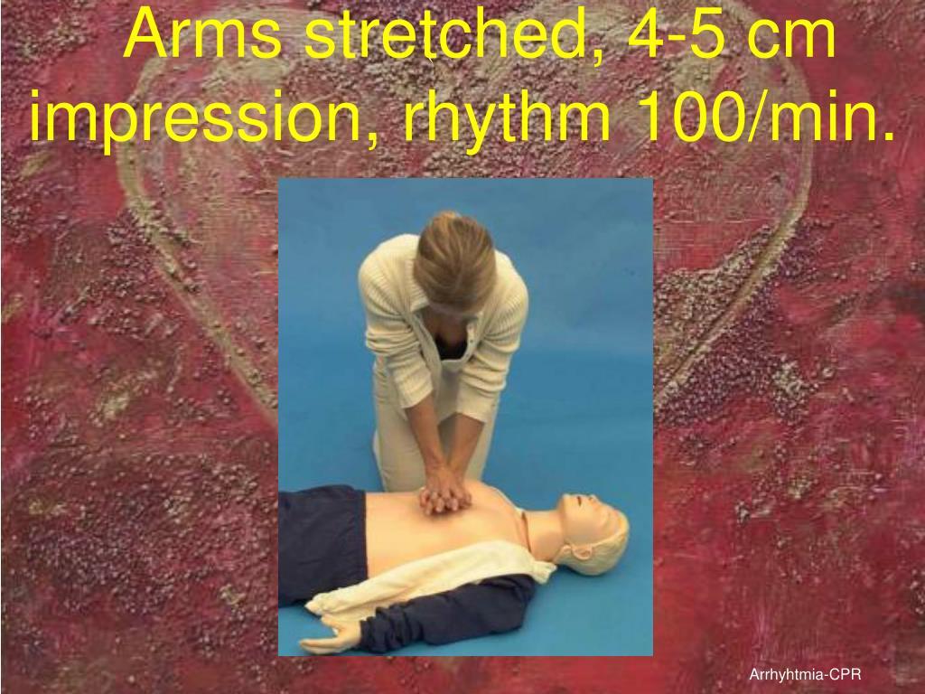 Arms stretched, 4-5 cm impression, rhythm 100/min.