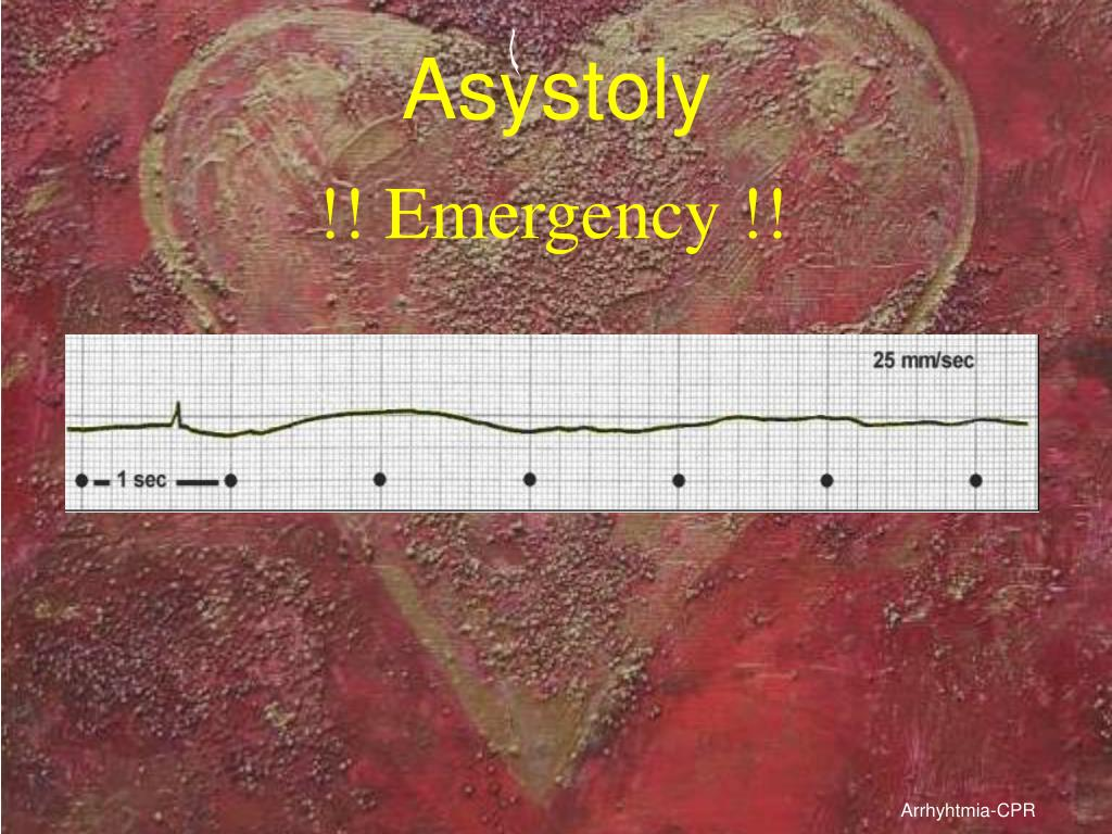 Asystoly