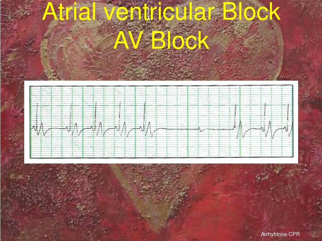 Atrial ventricular Block