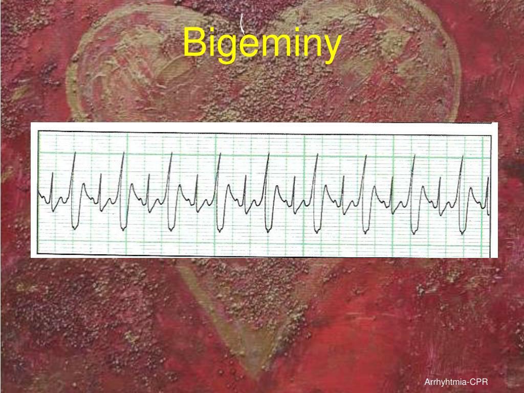 Bigeminy