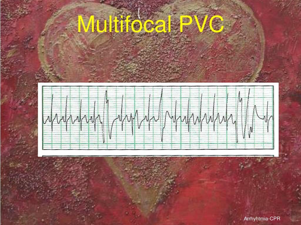 Multifocal PVC