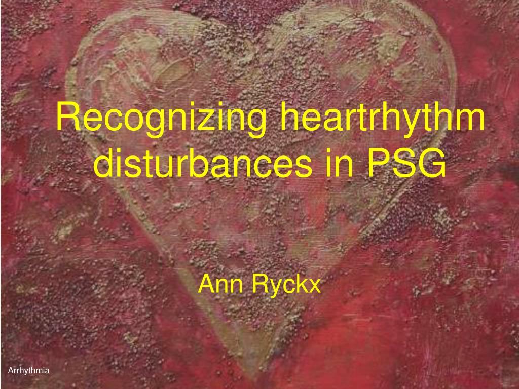 Recognizing heartrhythm disturbances in PSG