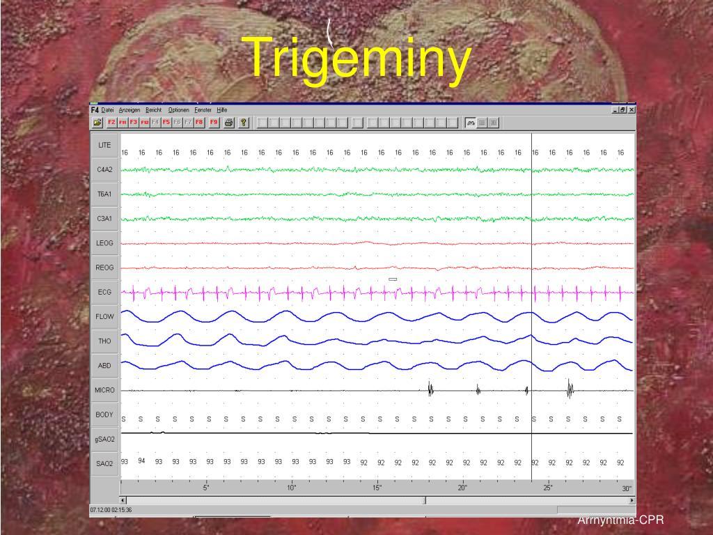 Trigeminy