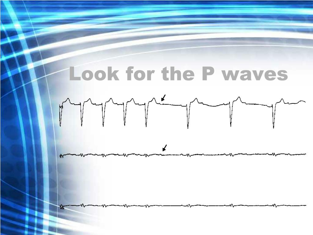 Look for the P waves