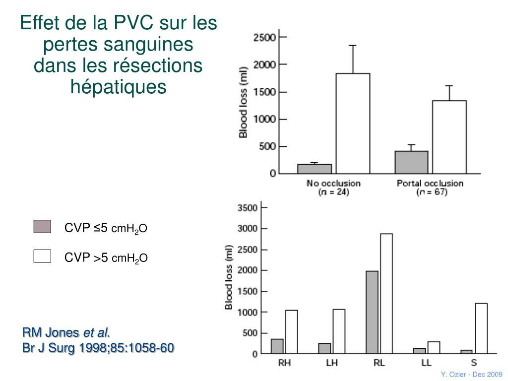 Effet de la PVC sur les pertes sanguines