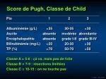 score de pugh classe de child