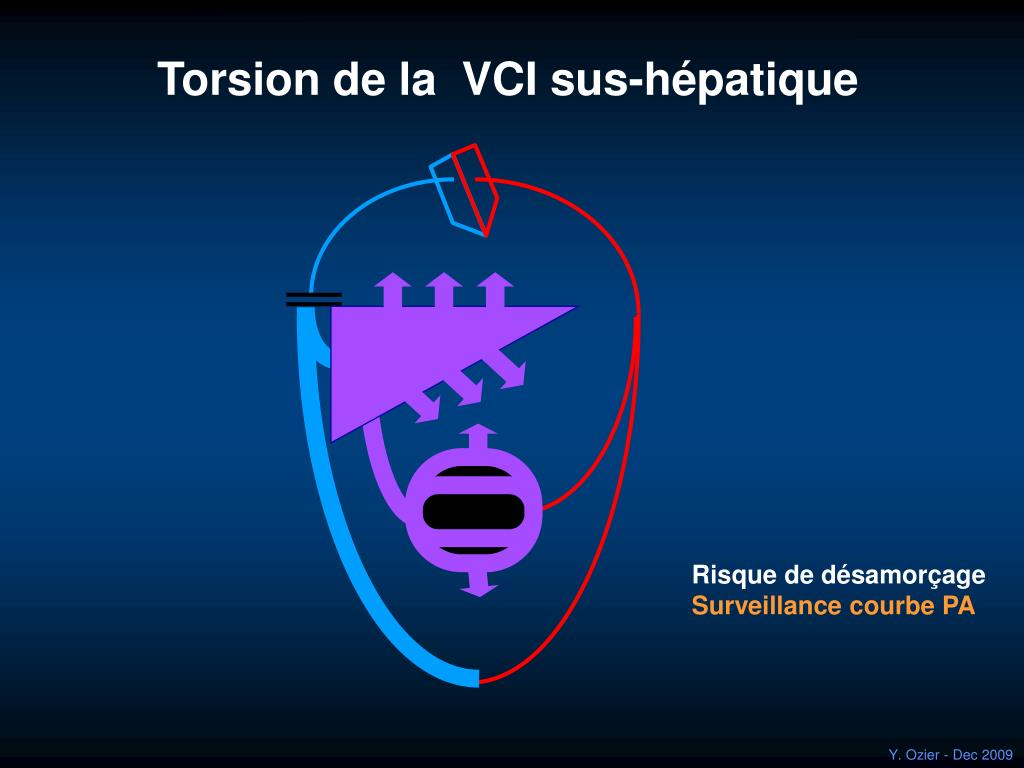 Torsion de la  VCI sus-hépatique
