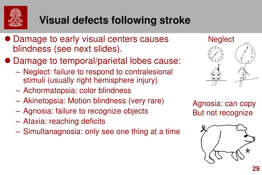 Visual defects following stroke