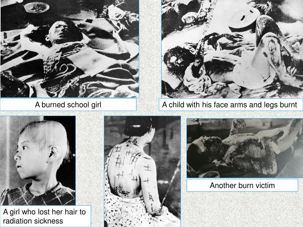 A burned school girl