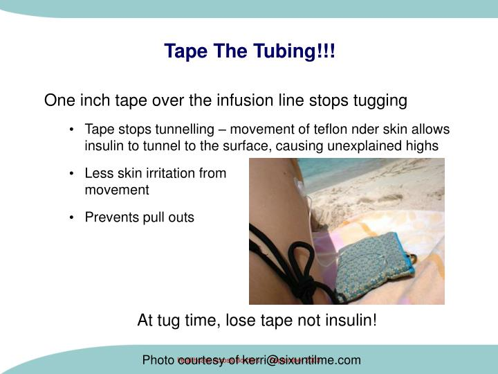 Tape The Tubing!!!
