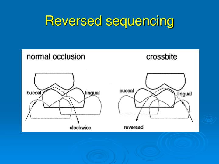 Reversed sequencing