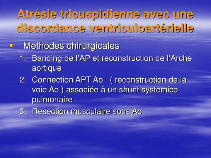 Atrésie tricuspidienne avec une discordance ventriculoartérielle