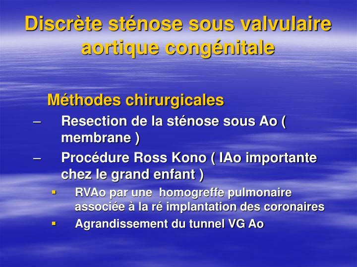 Discrète sténose sous valvulaire aortique congénitale
