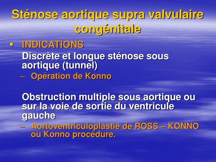 Sténose aortique supra valvulaire congénitale
