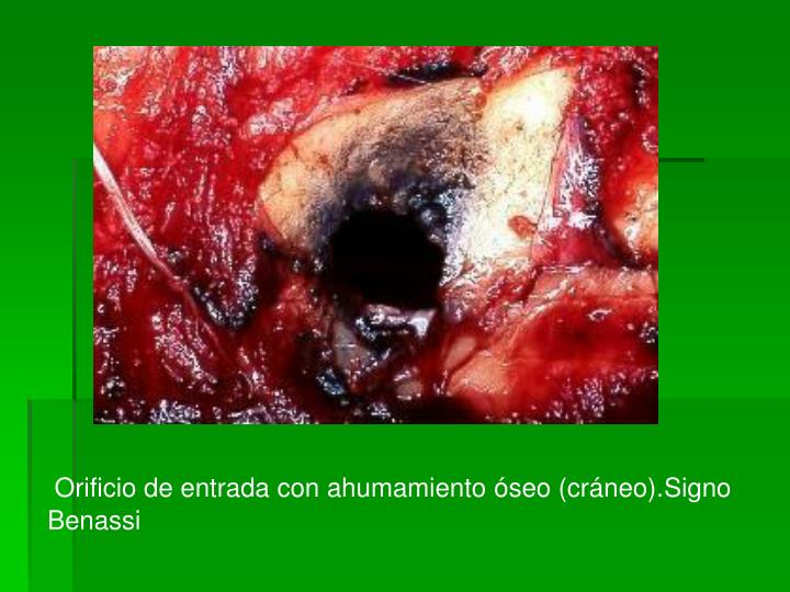 Orificio de entrada con ahumamiento óseo (cráneo).