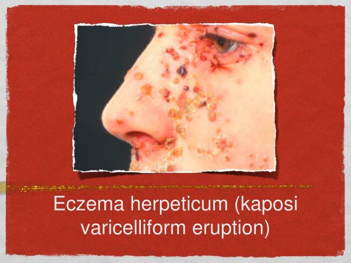 Eczema herpeticum (kaposi varicelliform eruption)