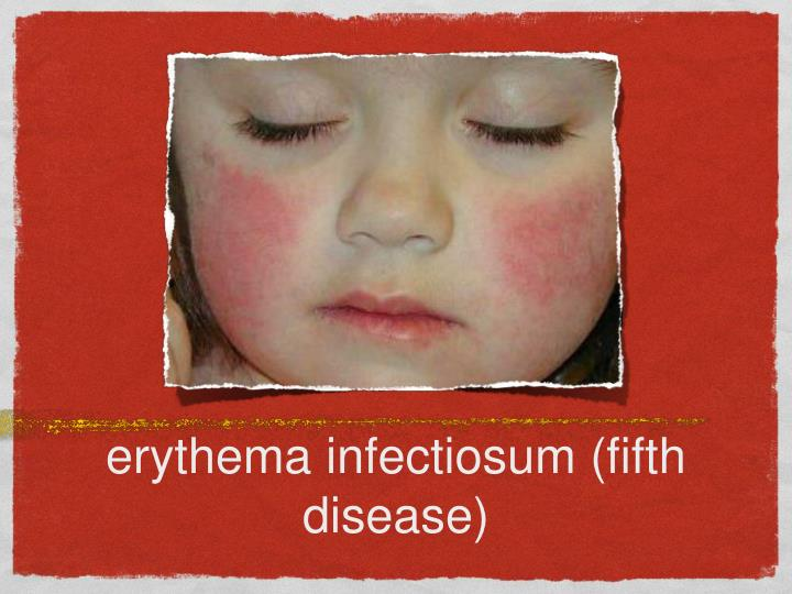 erythema infectiosum (fifth disease)