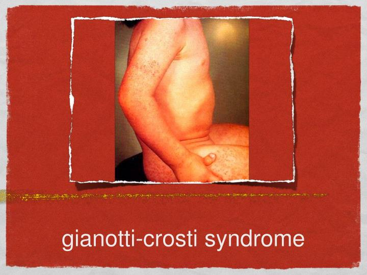 gianotti-crosti syndrome