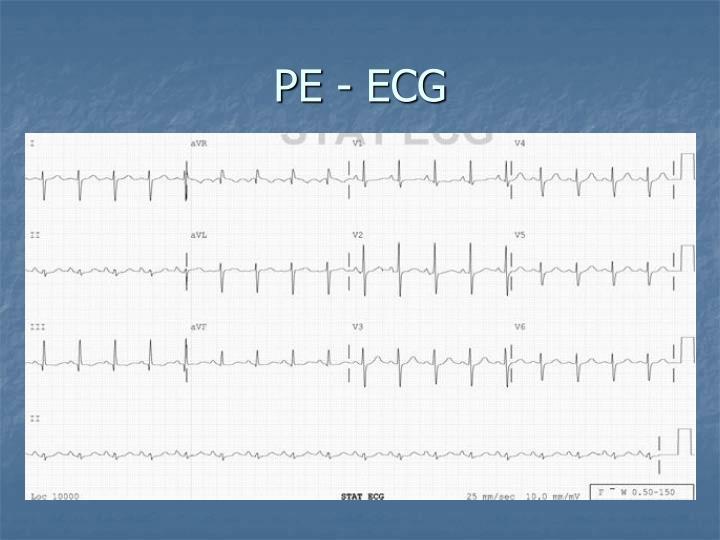 PE - ECG