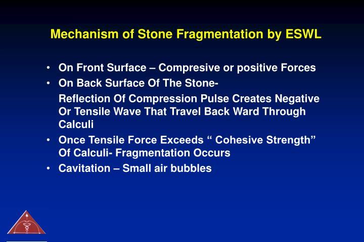 Mechanism of Stone Fragmentation by ESWL