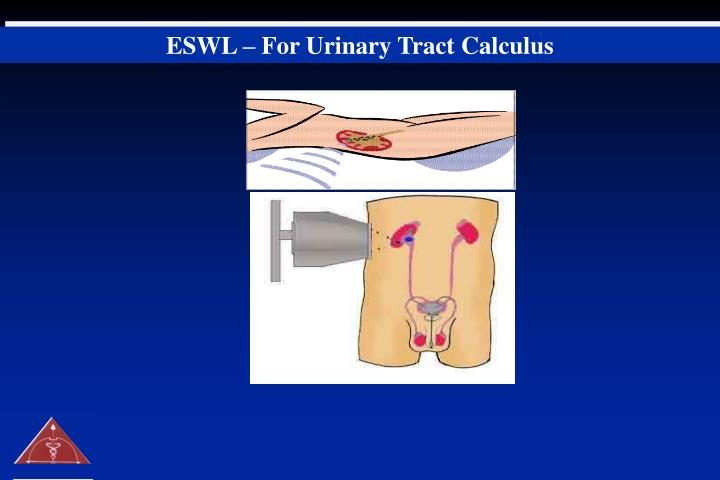 ESWL – For Urinary Tract Calculus