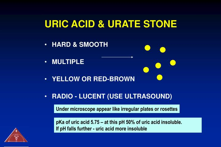 URIC ACID & URATE STONE