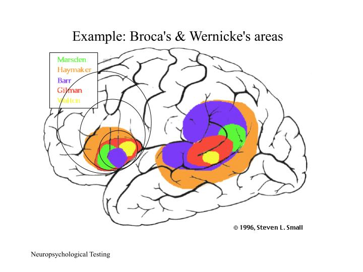 Example: Broca's & Wernicke's areas