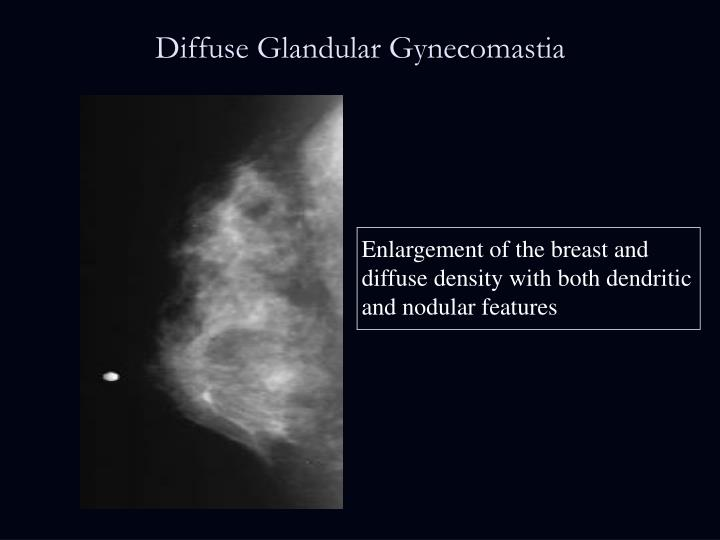Diffuse Glandular Gynecomastia