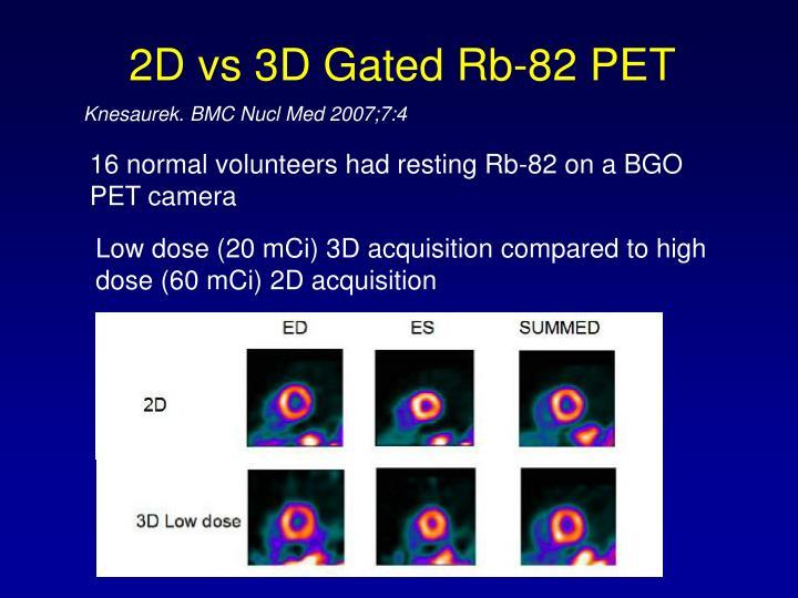2D vs 3D Gated Rb-82 PET