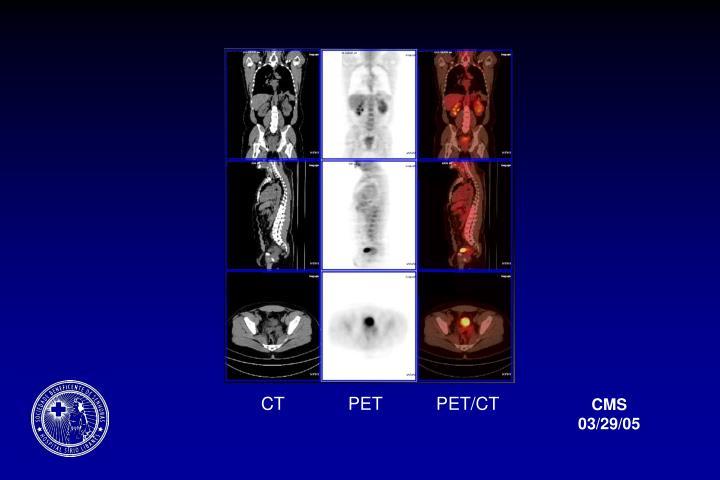 CT             PET           PET/CT