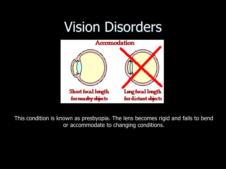Vision Disorders