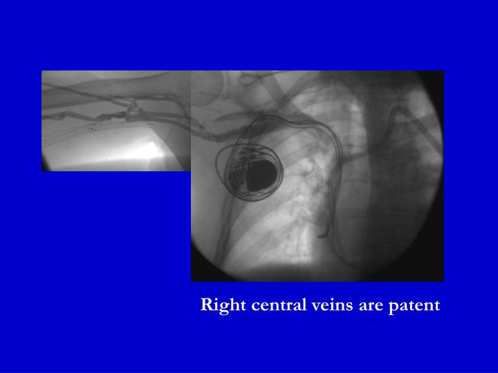 Right central veins are patent