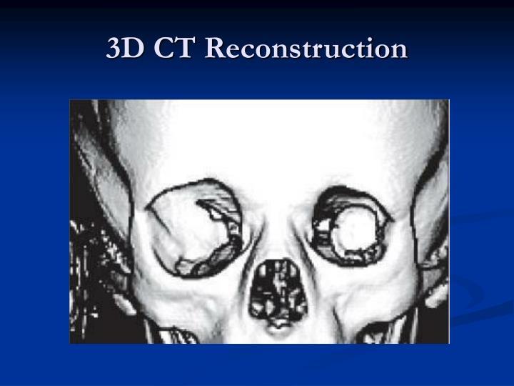 3D CT Reconstruction