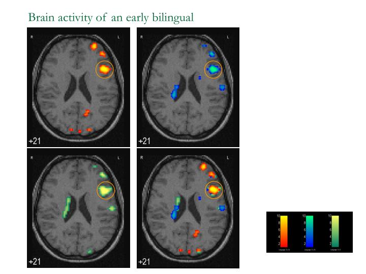 Brain activity of an early bilingual