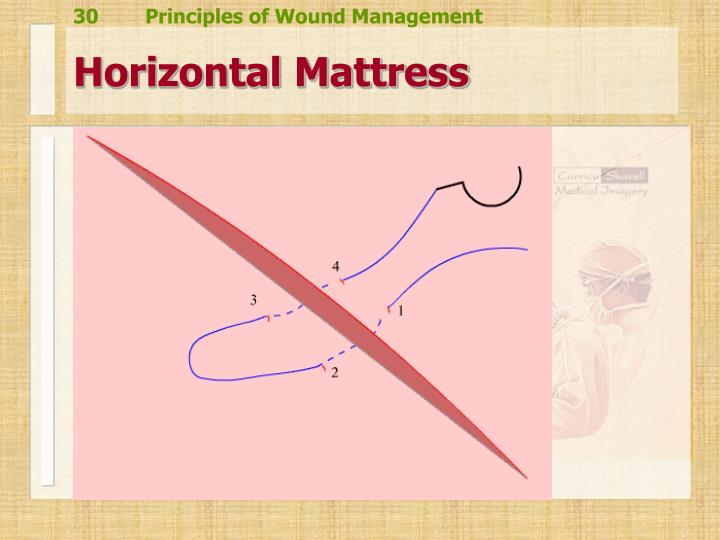 Horizontal Mattress