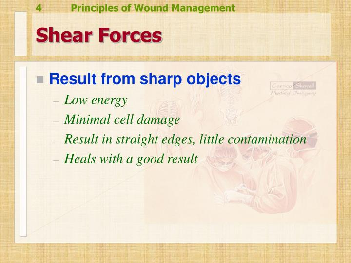 Shear Forces