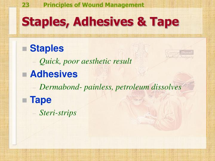 Staples, Adhesives & Tape