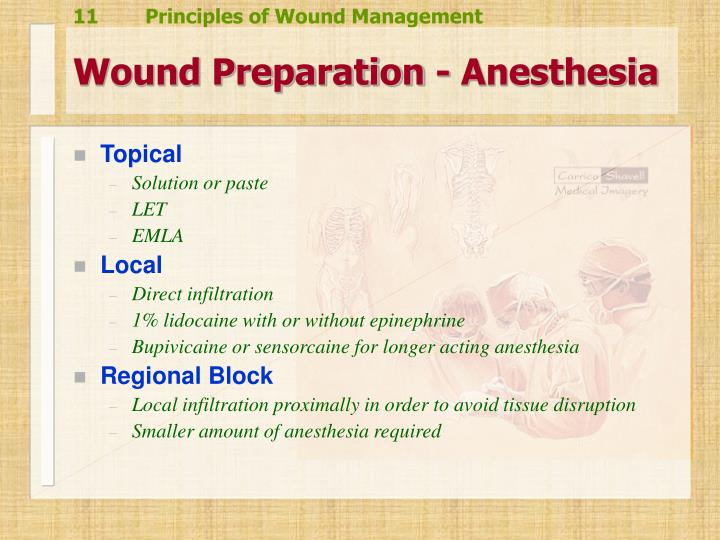 Wound Preparation - Anesthesia