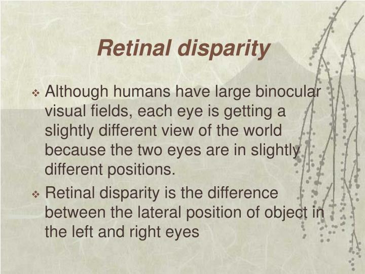 Retinal disparity