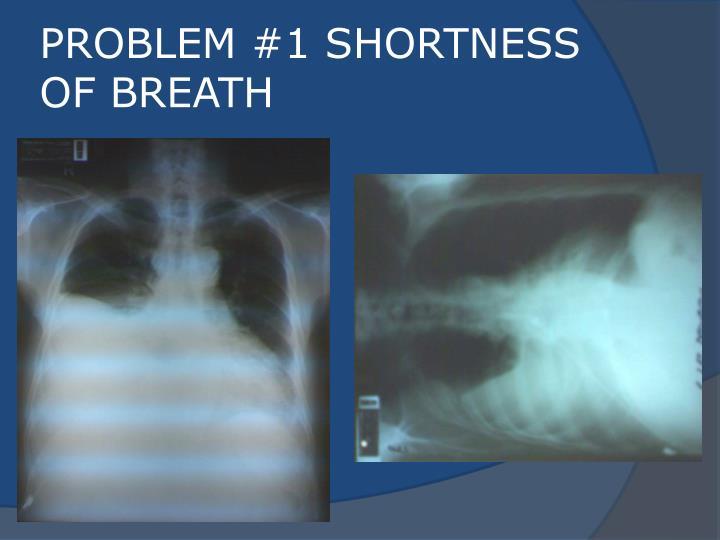 PROBLEM #1 SHORTNESS OF BREATH