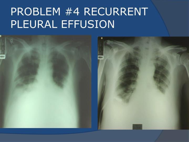 PROBLEM #4 RECURRENT PLEURAL EFFUSION