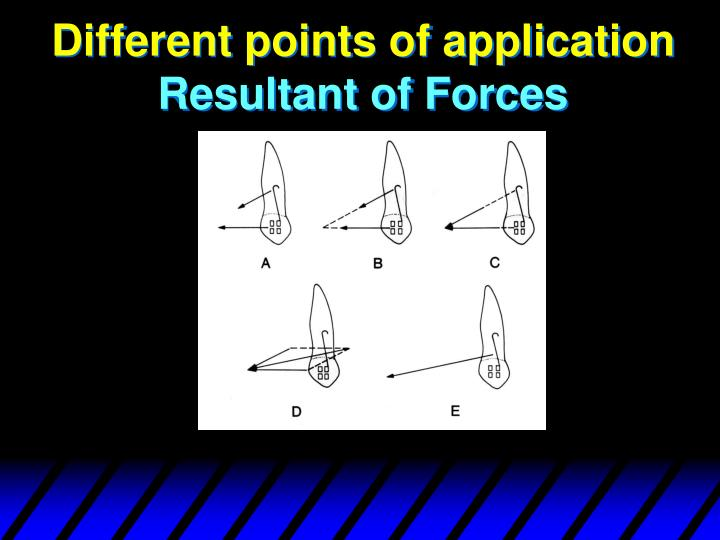 Different points of application