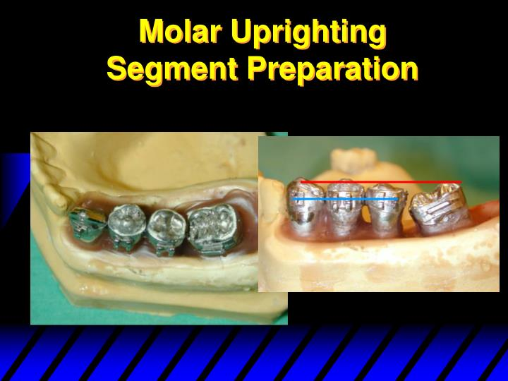 Molar Uprighting