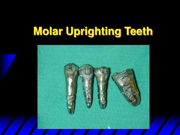 Molar Uprighting Teeth