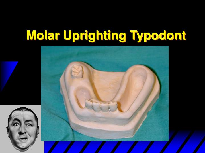 Molar Uprighting Typodont