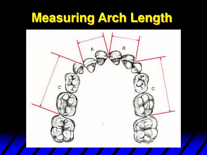 Measuring Arch Length