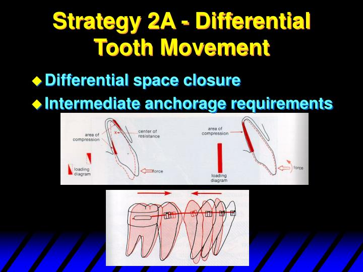 Strategy 2A - Differential Tooth Movement
